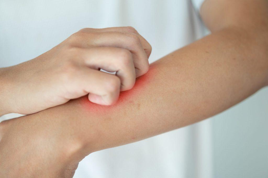 Das Bild zeigt die Arme eines Menschen, der sich wund kratzt.