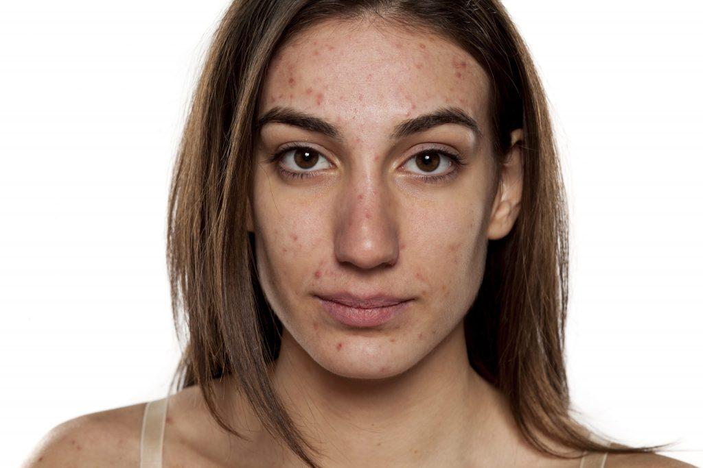 Das Bild zeigt eine Frau, die trotz ihrer Akne lächelt.